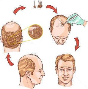 How FUE hair transplant works?