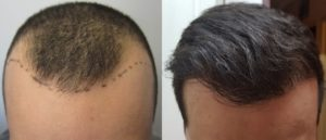 Before and after hair transplants
