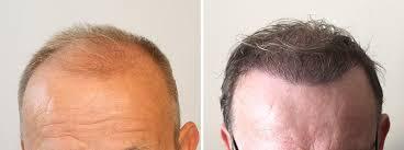 Hair transplants UK Exeter - Southampton